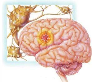 Ночные приступы эпилепсии