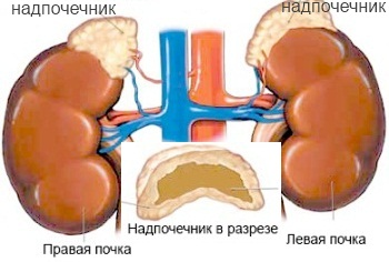 Болезнь Аддисона - симптомы и лечение
