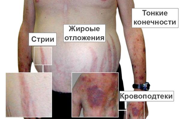 Болезнь Иценко Кушинга фото