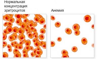 Анемия симптомы лечение