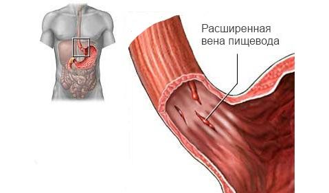 Кровотечения из варикозно расширенных вен пищевода