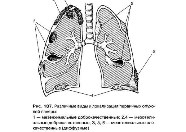 Рак плевры легких