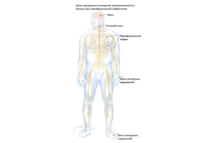 Травмы периферических нервов