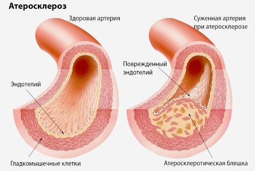 Атеросклероз и гиперлипопротеидемия
