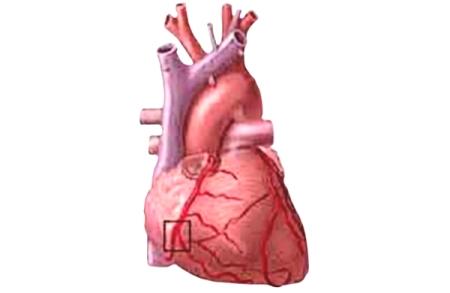 Легочное сердце, симптомы и лечение