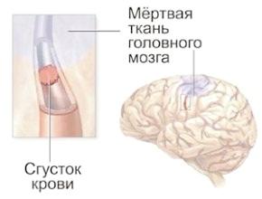 Сосудистые заболевания головного мозга - неврология