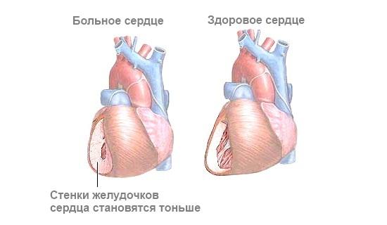 Симптоматическая артериальная гипертензия тиреотоксикоз