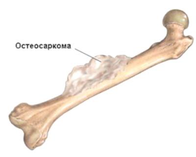 Остеосаркома кости