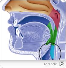 Рак горла, стадии, симптомы и выживаемость.