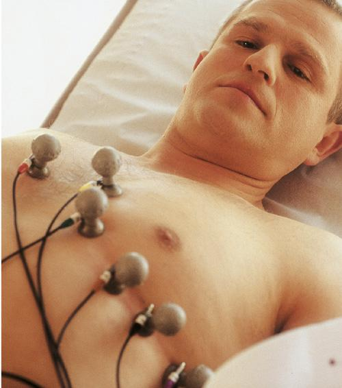 Аритмия симптомы и лечение