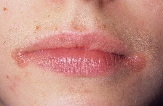 Причина заедов в уголках губ